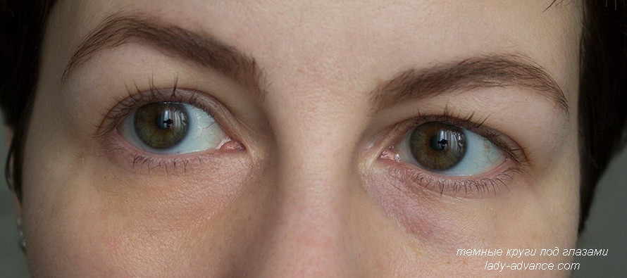 Как можно избавиться от темных кругов под глазами