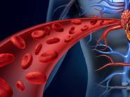 Как почистить кровь без лекарств — эффективно и самостоятельно?