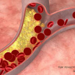 Как естественным путем почистить кровеносные сосуды и артерии