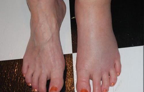 отечность ног при загрязненной печени