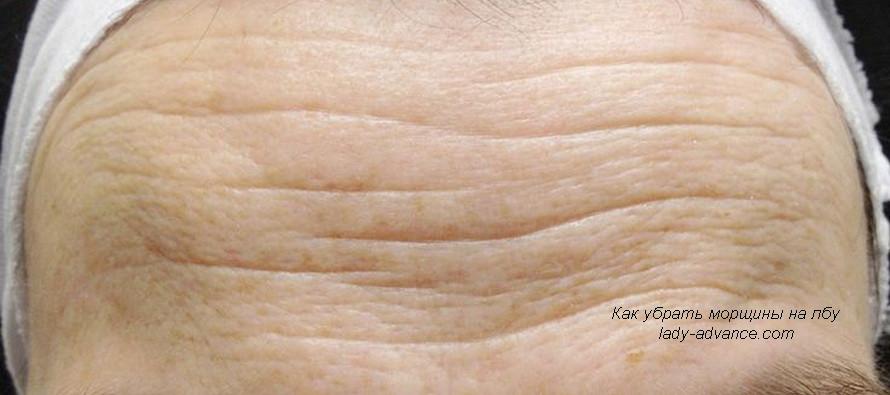 Морщины на лбу. Как убрать естественным способом