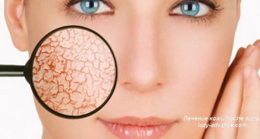 Лечение кожи после зимы