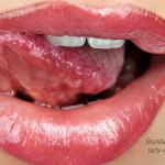 Домашние способы быстро вылечить волдырь на языке